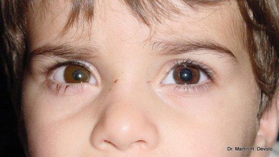 caso 2 con protesis en ojo der