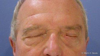Cierre casi completo del ojo con la pesa y la reparación del párpado inferior