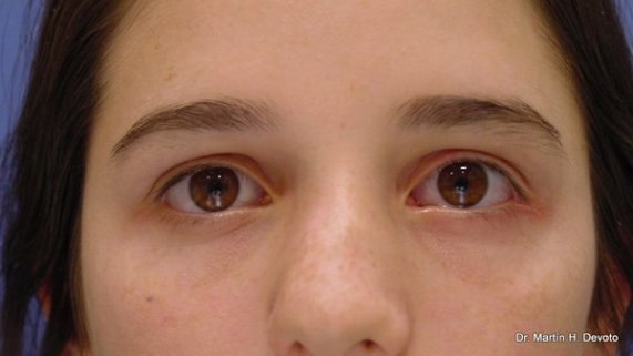 Resultado posterior al implante de pesa de oro en paralisis facial izquierda y corrección de su párpado inferior
