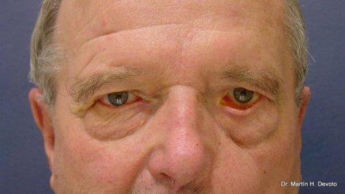 Paralisis facial izquierda y ectropion del párpado inferior (separación del ojo)