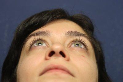 Enfermedad Tiroidea Ocular 1