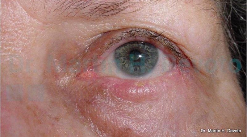 cancer de piel case 7_5