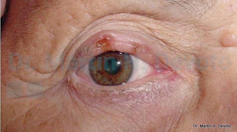 cancer de piel case 9_2