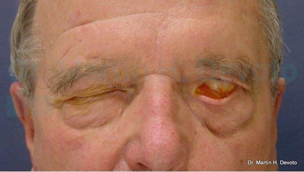 paralisis facial 7
