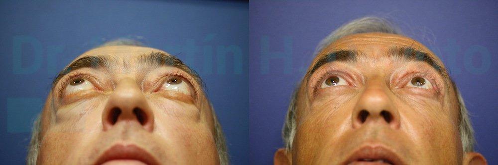 tiroides y ojos 4