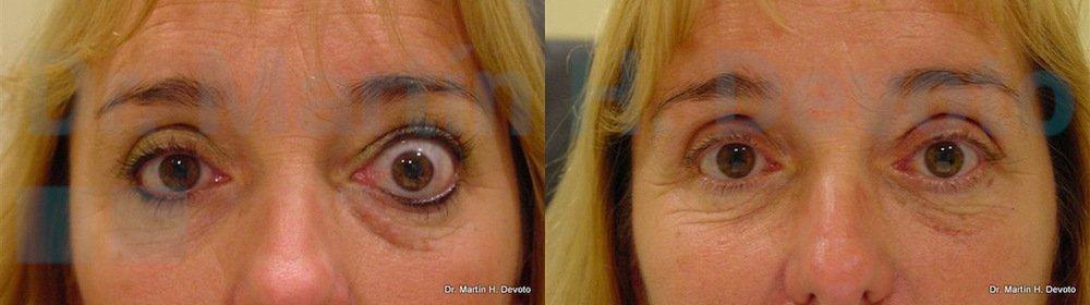 tiroides y ojos 7