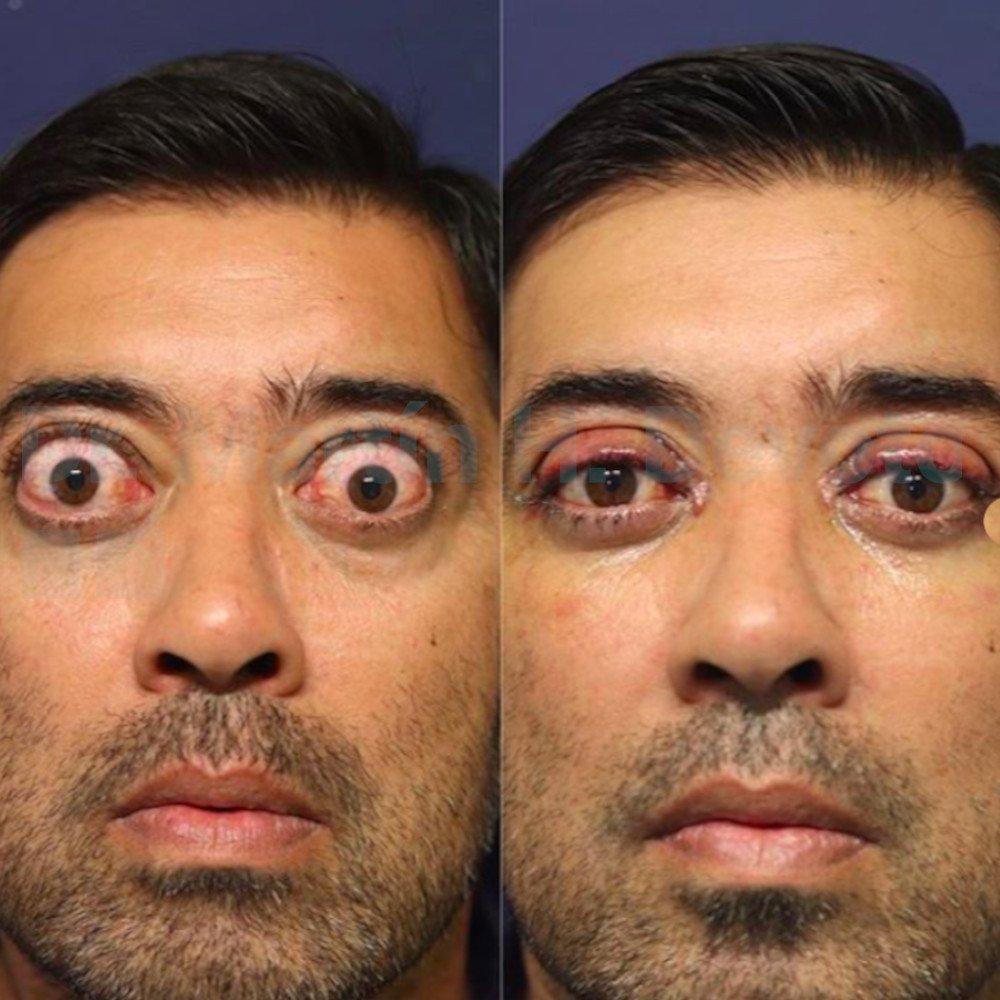 tiroides y ojos 2.1