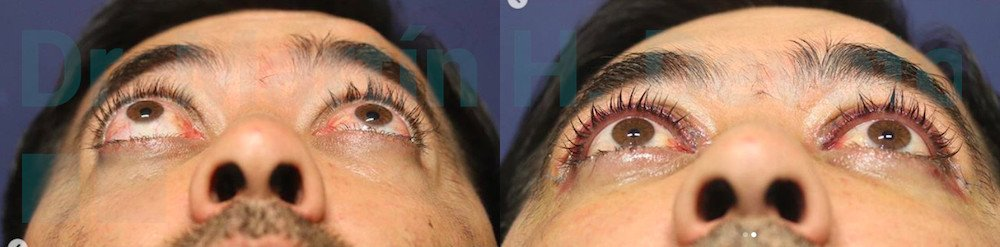 tiroides y ojos 2.2