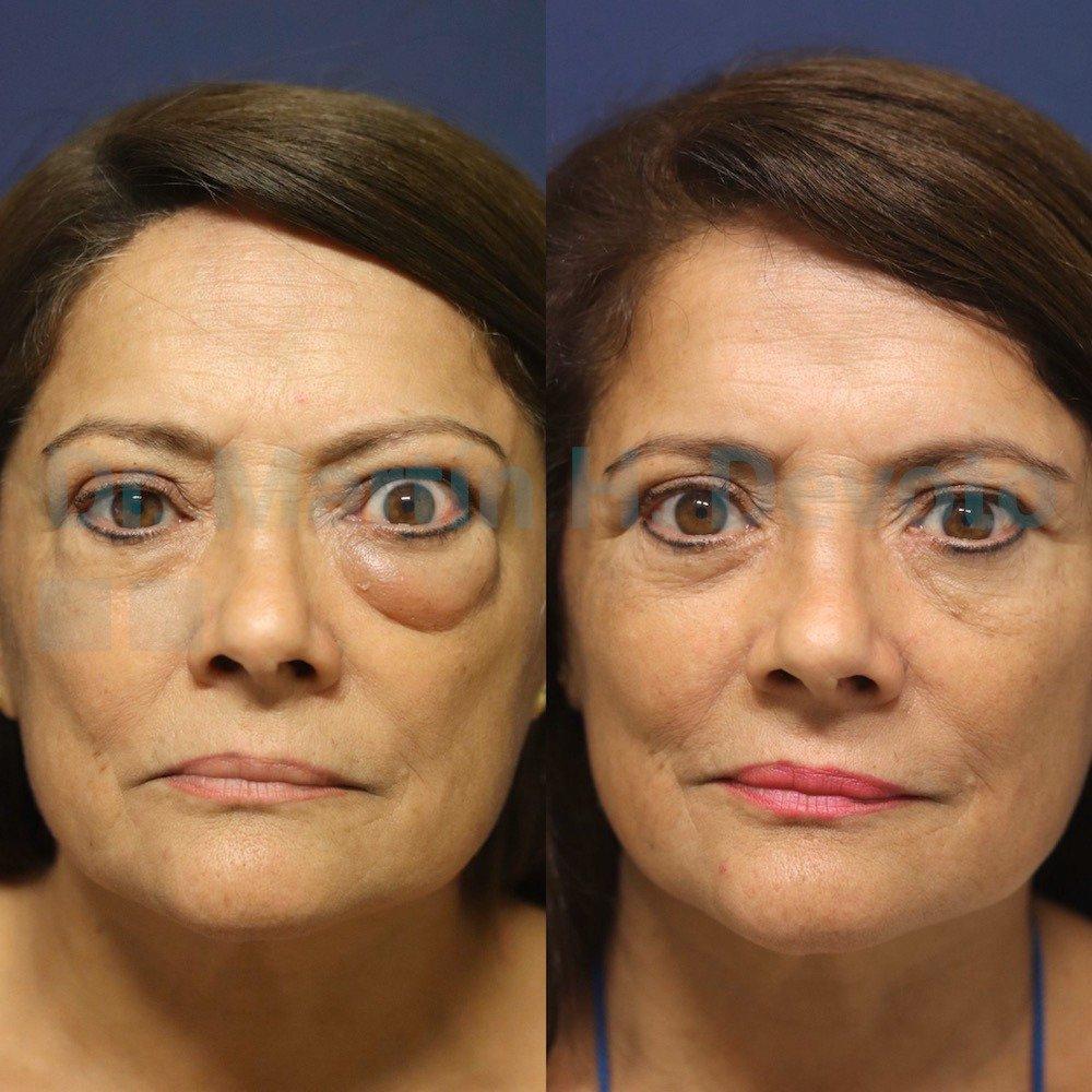 tiroides y ojos imagenes 210120