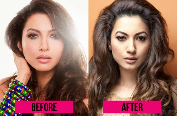 gauhar-khan-before-and-after-surgery
