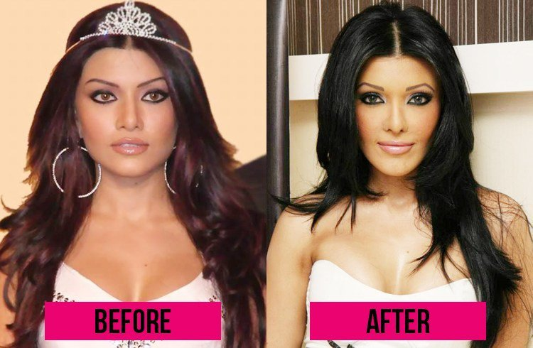 koena-mitra-before-and-after-surgery