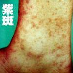 アレルギー性紫斑病の原因は食べ物?完治はするのか?