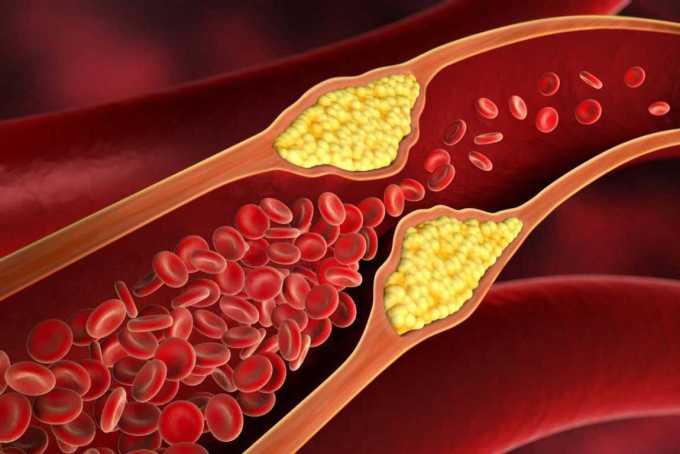 Penumpukkan kolesterol
