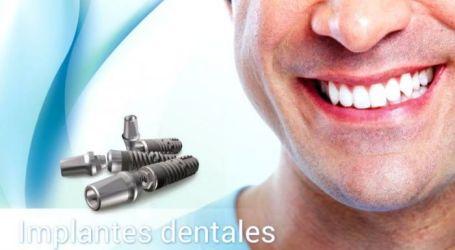 En Once. diseñamos tu sonrisa. Implantes dentarios.
