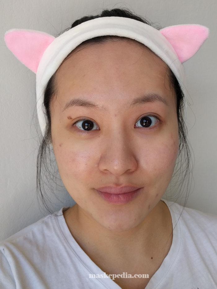 Trefiel Moisturizing Lace Anti-Aging Hydromask