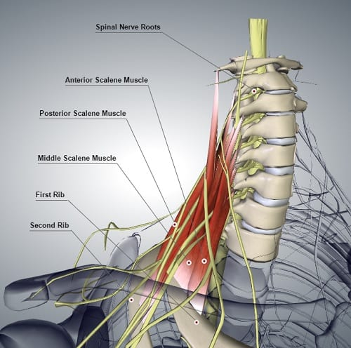 Computer graphic of the scalene muscle group showing spinal nerve roots.