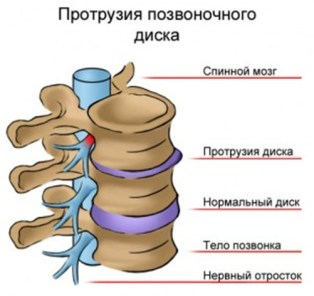 disc-protrusion