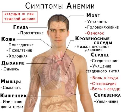 priznaki-anemia1
