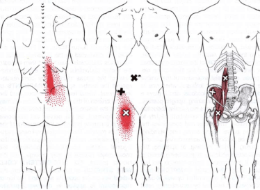 Pain From Sitting, Hip and Thigh