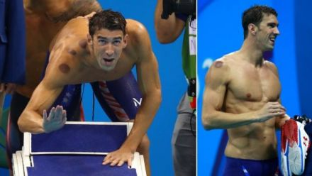 Michael Phelps shows off cupping marks at 2016 Olympics.