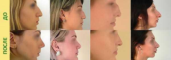 Коррекция крыльев носа фото до и после – что это такое ...