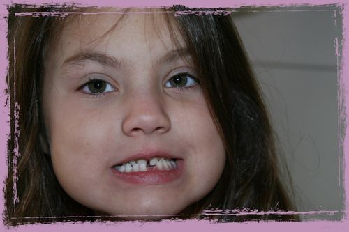 Lost tooth grunge