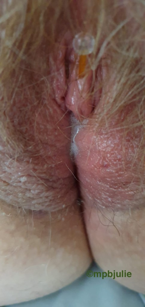My external labia, with clitoris showing. I have a piercing which has a little silicone bar.