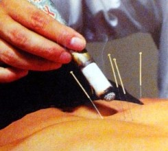 Moxibustion Acupuncture Chinese Medicine