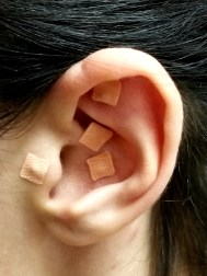 Ear-Seeds-Masuda-Acupuncture-Placerville