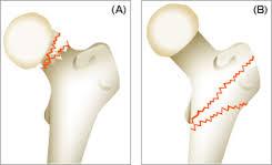 大腿骨頸部骨折の麻酔は硬膜外麻酔、脊髄くも膜下麻酔(エピスパ)がよい
