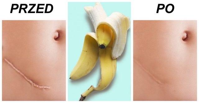 10 sposobów jakie ma skórka od Banana