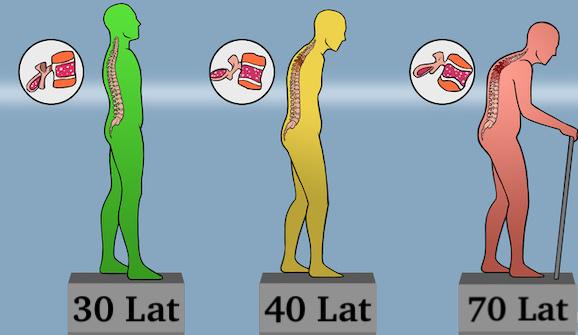 Sposoby na Twoje Kości – Nowe Metody