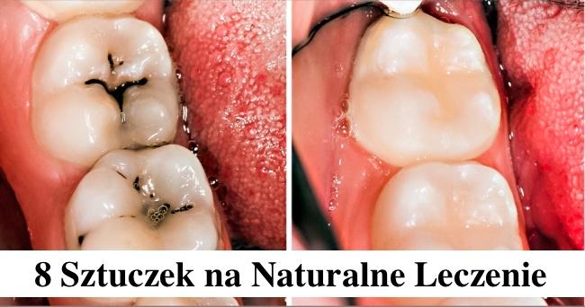 8 prostych sztuczek na naturalne leczenie próchnicy zębów