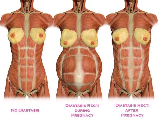 diastasis3