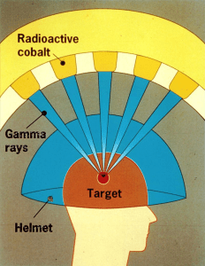 Figure 1: Cobalt-60 Use in Gamma Knife. (Source)