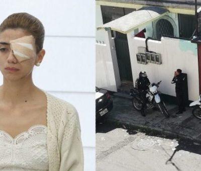 Mujer que perdió su ojo durante el paro nacional denuncia «persecución
