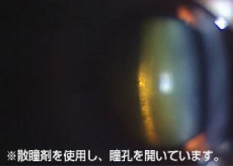 手術前の水晶体