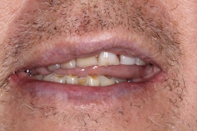 Before Full Mouth Reconstruction