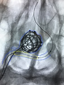Fig. 3. Unsubtracted angiogram during balloon-assisted coil embolization of the ruptured PICA aneurysm. The blue line denotes the location of the parent vertebral artery as well as the small PICA blood vessel and the aneurysm. Coils can be seen in the aneurysm. The yellow line denotes the location of a balloon catheter that is helping to hold the coils in the aneurysm and protect the parent vertebral artery.