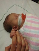 She developed Bronchiolitis and had one set of tubes giving her oxygen and another set of tubes feeding her milk through her nose and into her stomach. She needed to suck on a dummy so she didn't 'forget' how to feed when she was well again.