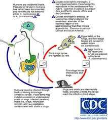 Humans are an accidental host for the rat lungworm nematode, but ingesting the nematode can have severe consequences. Graphic by Centers for Disease Control.