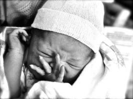 circumcision circumcise newborn Maui