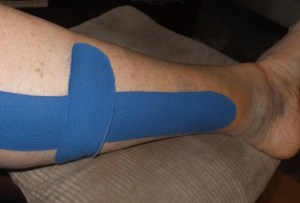 My leg has graduated to being taped. One of life's minor plot twists
