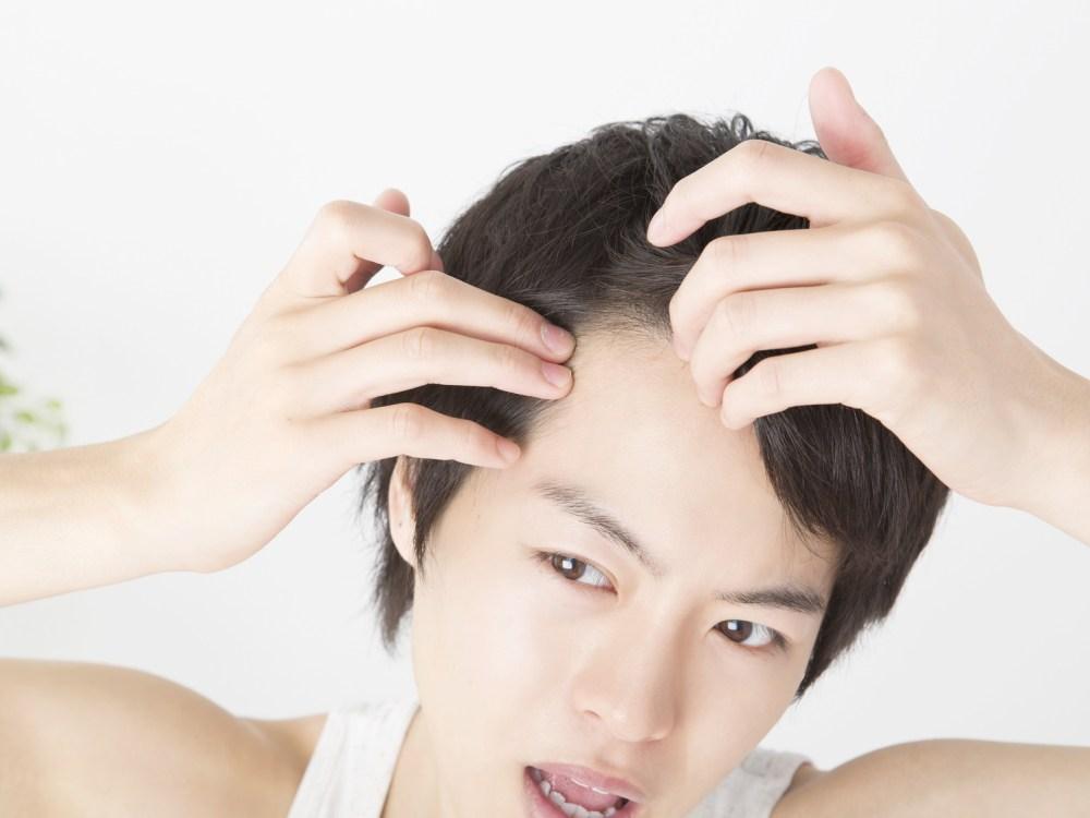 額の生え際 抜け毛を気にする男性
