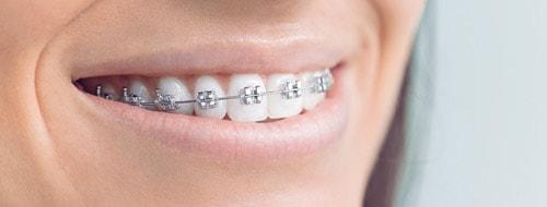 Teeth Whitening take home kit