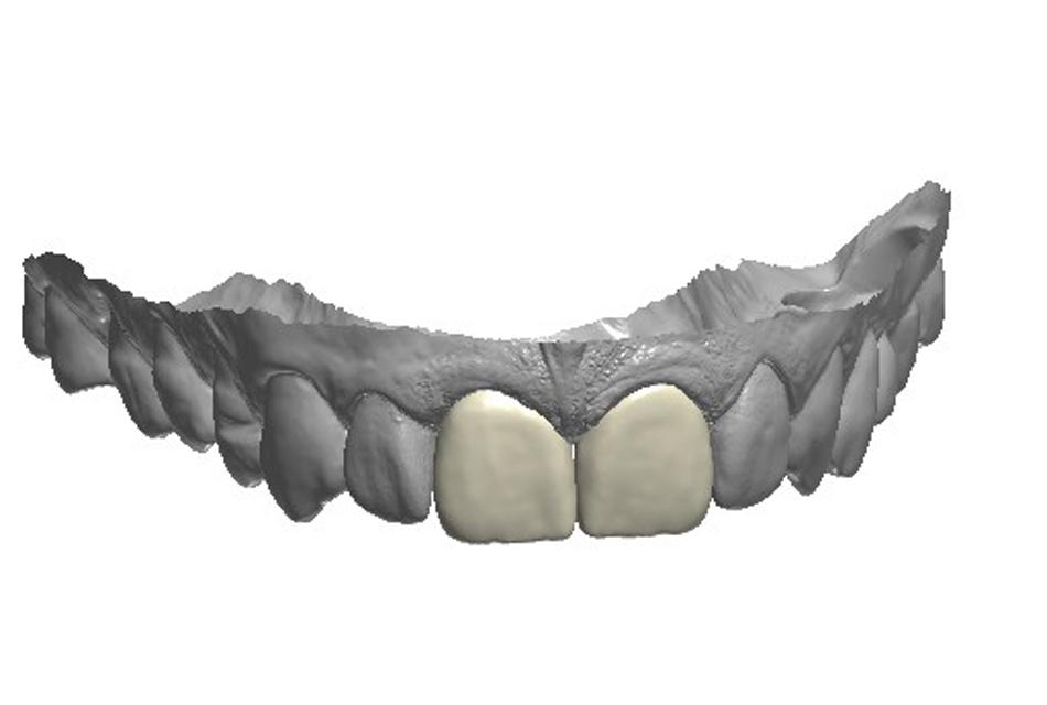 Corona e Faccetta incisivi centrali e.max
