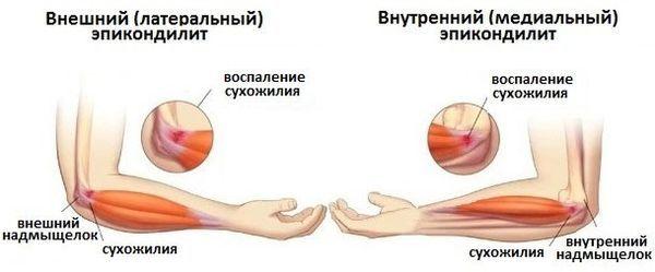 Эпикондилит локтевого сустава: симптомы и лечение - На коже