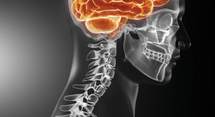 What Is Second Impact Syndrome Brain Injury Colli