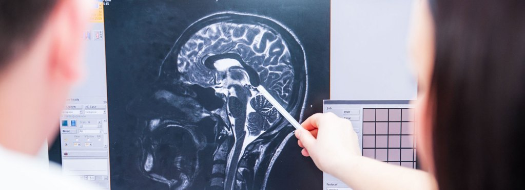 What is a minor traumatic brain injury