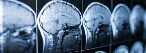 Traumatic Brain Injury from Car Accident Houston Car Accident Attorney